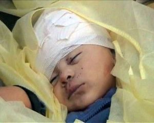 seorang bocah Palestina yang jadi korban serangan Israel